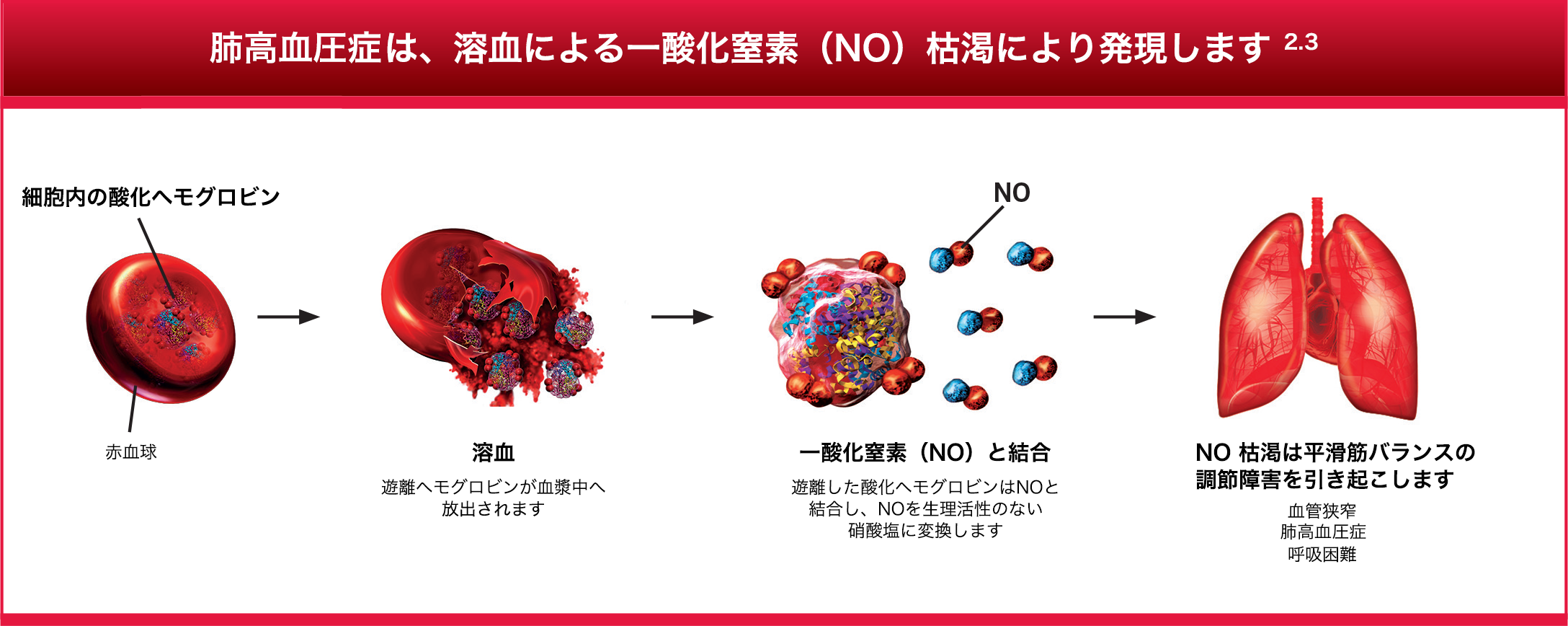PHTN is an end result of hemolysis-induced nitric oxide (NO) depletion3,4